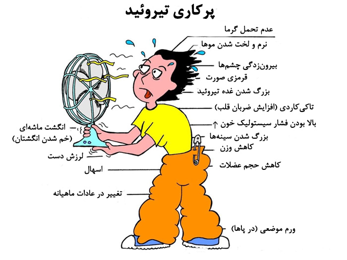 Image result for تیروئید